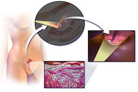 Деструктивното лечение на преканцерози на маточната шийка в МЦ Гея Мед-напълно безопасно и с отлични възстановителни резултати