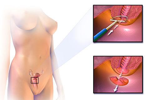 Електроексцизия на маточната шийка с цел диагностика и лечение на предракови изменения на маточната шийка