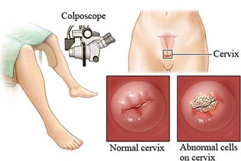 Колпоскопия-специализирано гинекологично излседване за откриване на предракови и ракови състояния
